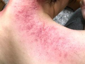 刮痧すると赤い発疹ができる
